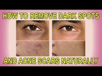 How to remove darks spots and acne naturally, tutorial
